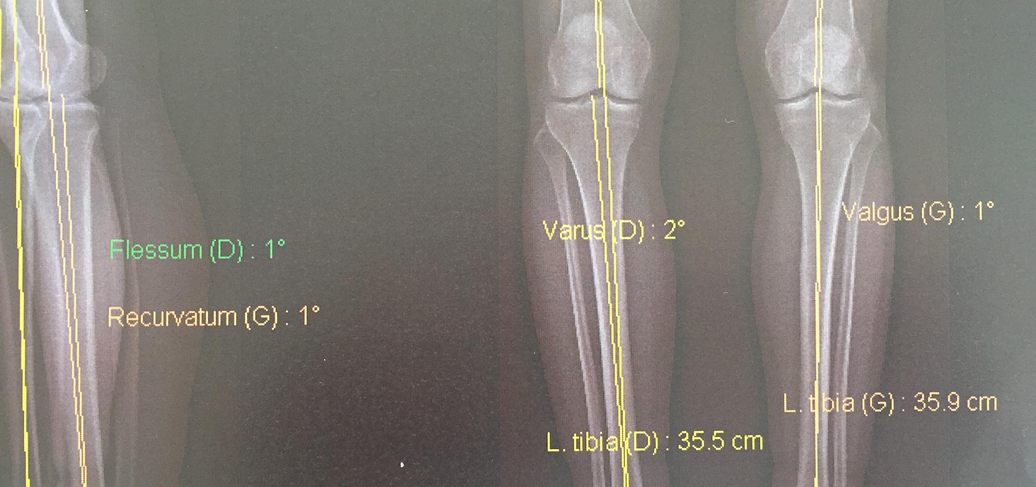 Problème de genou